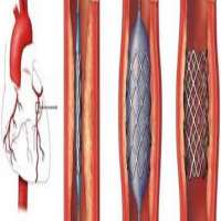 Coronary Stents Manufacturers