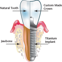 Titanium Dental Implant Manufacturers