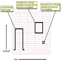 ECG Paper Manufacturers