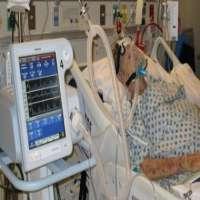 Noninvasive Ventilation Manufacturers