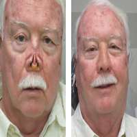 Facial Prosthesis Importers